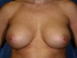 Breast Augmentation/Breast Implants