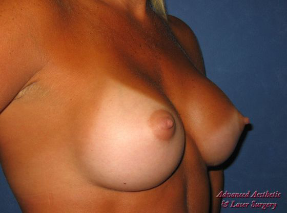 Breast Augmentation/Breast Implants