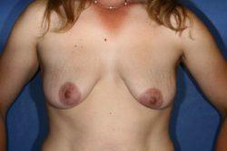 Mastopexy/Breast Lift