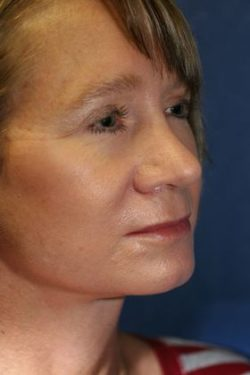 Face & Neck Lifts