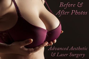 Change In Bra Size Following Breast Surgery Columbus Oh